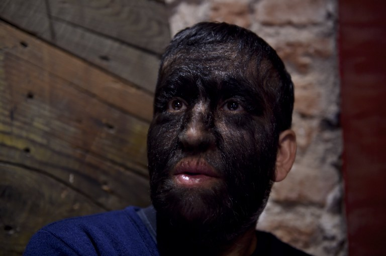 "Mexican Jesus Aceves known as ""Chuy The Wolf Man"" due to the condition of the disease hypertrichosis, speaks during an interview in Mexico City on September 24, 2015. According to Aceves, for generations their family has been suffered hypertrichosis, better known as wolfman syndrome, and some times it had been cause of unemployment or discrimination. Mexican film director Eva Aridjis  recently presented a documentary movie about the Aceves family life's.   AFP PHOTO/ Yuri CORTEZ"