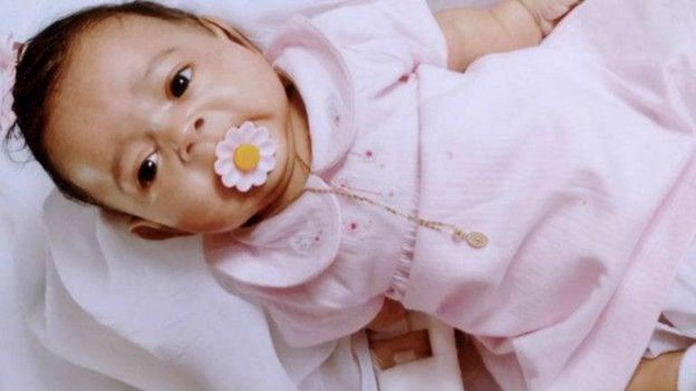 La extraña enfermedad de una niña que nació sin huesos2 (2)