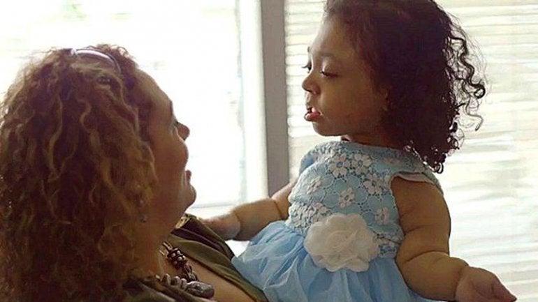 La extraña enfermedad de una niña que nació sin huesos2