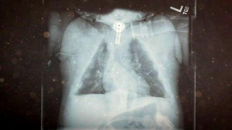 La extraña enfermedad de una niña que nació sin huesos5